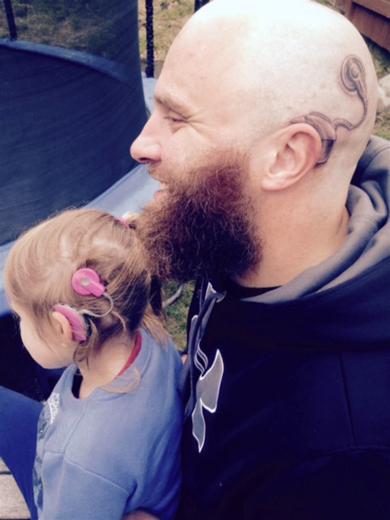 Papà's cochlear implant tattoo matches the real one worn by daughter.