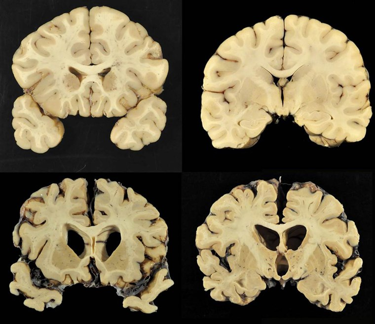 Bagian from a normal brain, top, and from the brain of former University of Texas football player Greg Ploetz, bottom, in stage IV of chronic traumatic encephalopathy.