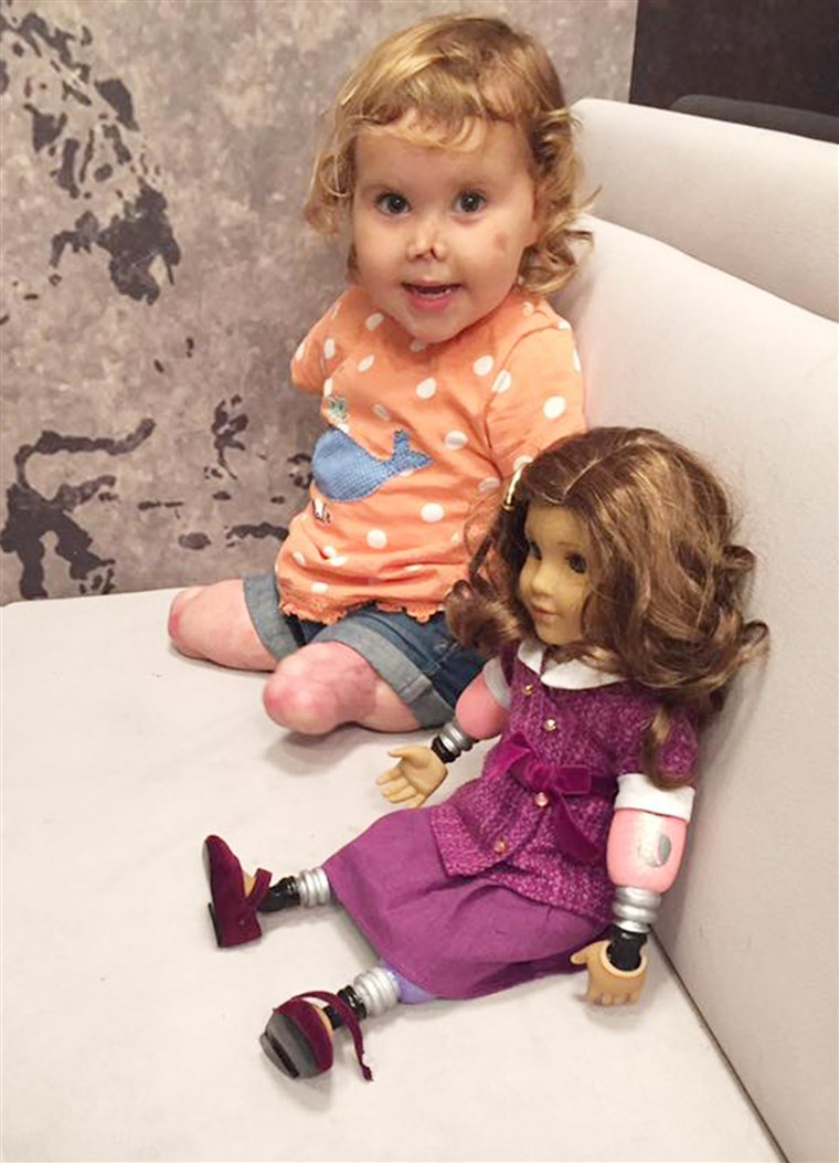 Quadrupla-amputato toddler receives look-alike doll.