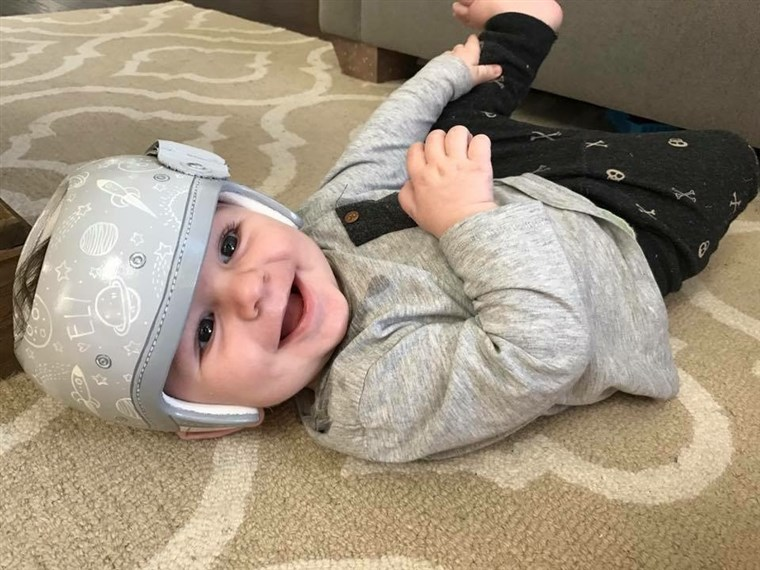 Stephanie Hanrahan says she struggled with seeing a piece of white plastic strapped to her infant son, Eli's, head. So the Texas mom contacted Strawn for some design help.